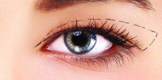 phẫu thuật cắt mí mắt có nguy hiểm không