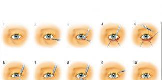 phẫu thuật cắt mí mắt dưới